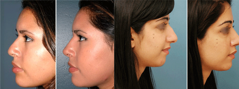 Rhinoplasty in Lahore   Nose Reshaping Surgery in Pakistan -